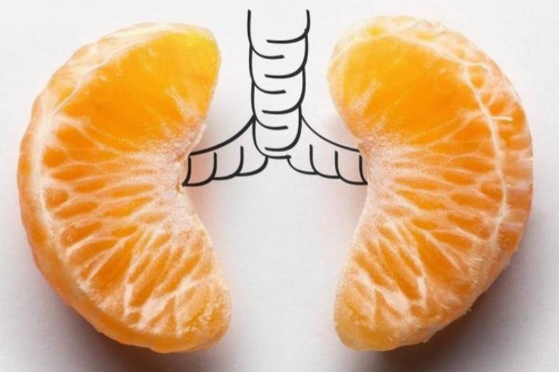 orange-lungs-87688